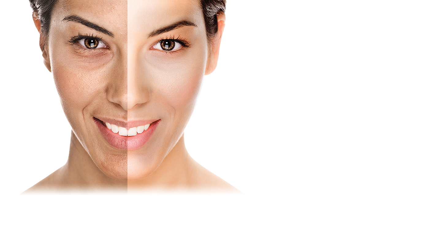 Home Page Oxygeneo 3 In 1 Super Facial